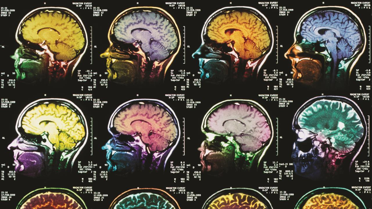 Brain Imaging Studies Seek Signs Of >> New Mri Contrast Agents Feature Chemistry World