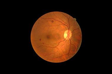 Damaged retinas, such as the one highlighted here, could eventually be replaced by artificial ones made from 2D materials.