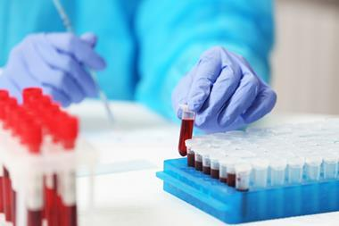 Scientist working with blood sample in a laboratory