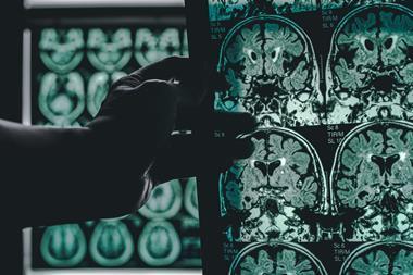 shutterstock 664361164 MRI brain scan of an Alzheimers patient