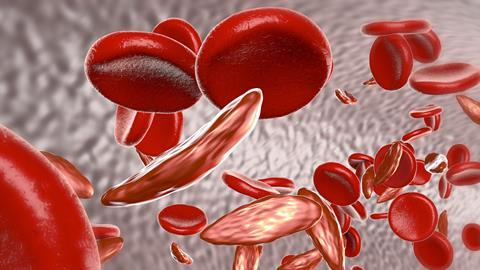 FDA Approves New Treatment For Sickle Cell To Reduce Complications