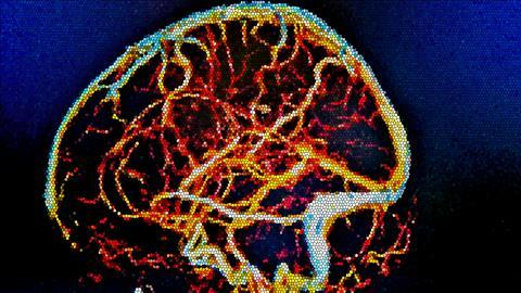 Brain MRI, cerebral vessels