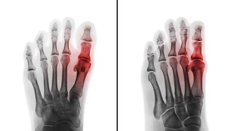 Film x-ray of human foot and arthritis at first metatarsophalangeal Joint . 2 position ( front and side view )