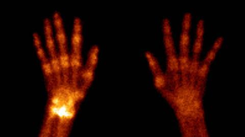 Algodystrophy of the hands, scintigram. Algodystrophy (reflex sympathetic dystrophy) is a condition causing pain, swelling and tremor in affected areas (white). In its later stages, it can lead to muscle wasting and demineralisation of bone. The cause is
