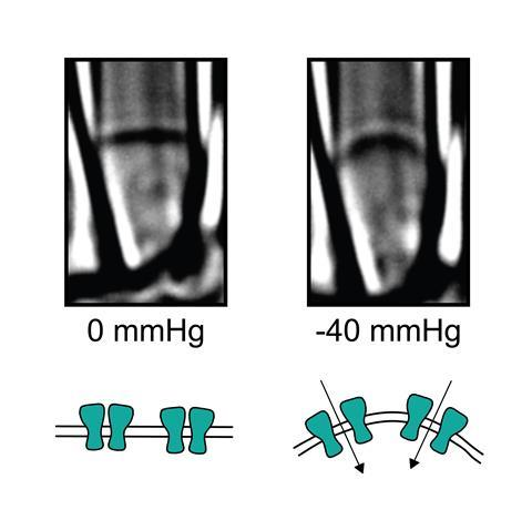 Piezo ion channels being mechanically-activated, before & after