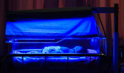 Newborn baby with neonatal jaundice and high bilirubin hyperbilirubinemia under blue light for phototherapy