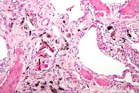 High magnification micrograph of asbestosis of the lung
