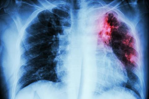 Pulmonary Tuberculosis chest X-ray