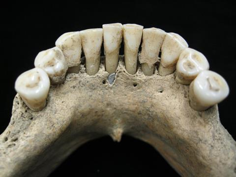 A picture of a 12th century nun's teeth
