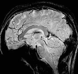 FEATURE-MRI-275