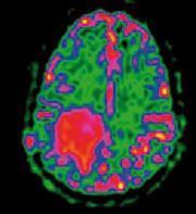 FEATURE-MRI-180