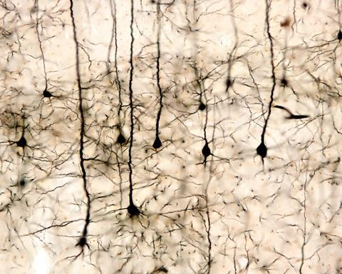Pyramidal neurons of the cerebral cortex impregnated with the Golgi method