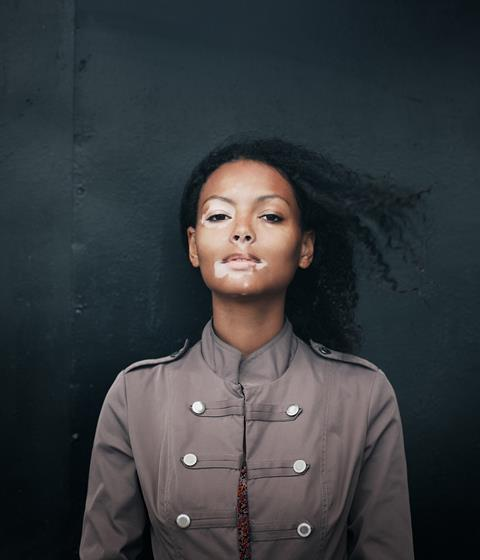 A model with facial vitiligo