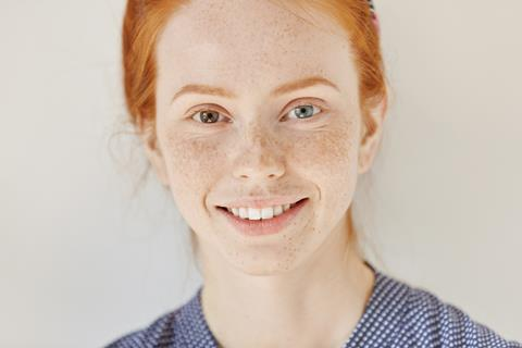A redhead model with heterochromatic irises