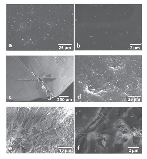 Microscope images showing intact surface of a new magnetic stir bar and different types of damage to the in-use stir bar surface