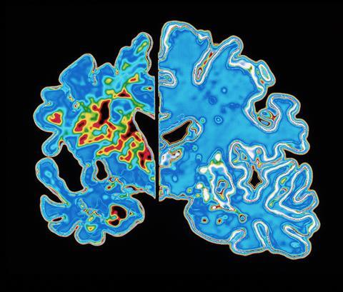 Understanding Alzheimer's - Disease vs normal brain